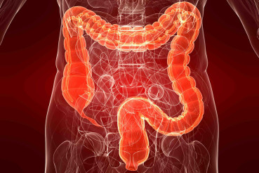 Intestino irritabile e disbiosi